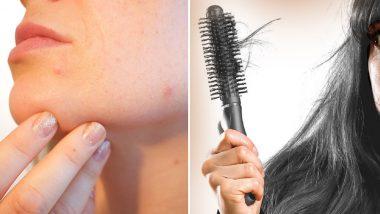 महिलाओं के चेहरे पर पिम्प्लस और बाल की कमी से बढ़ रहा है तनाव का खतरा