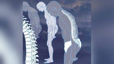 एंकायलूजिंग स्पॉन्डिलाइटिस में बढ़ जाती है रीढ़ की हड्डी, जानें इसके लक्षण और बचाव