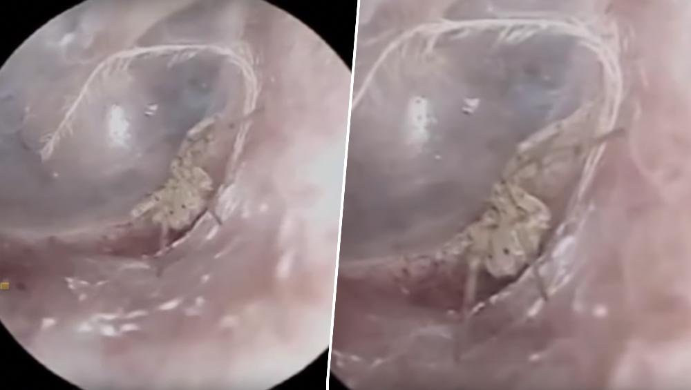 चीन: मकड़ी ने 60 साल के व्यक्ति के कान में घुसकर बुने जाले, डॉक्टर्स हुए हैरान, देखें वीडियो