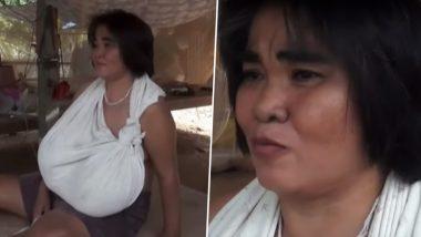 तेजी से बढ़ते जा रहे हैं इस महिला के Boobs, चलने के लिए बैसाखी का लेना पड़ता है सहारा, देखें वीडियो