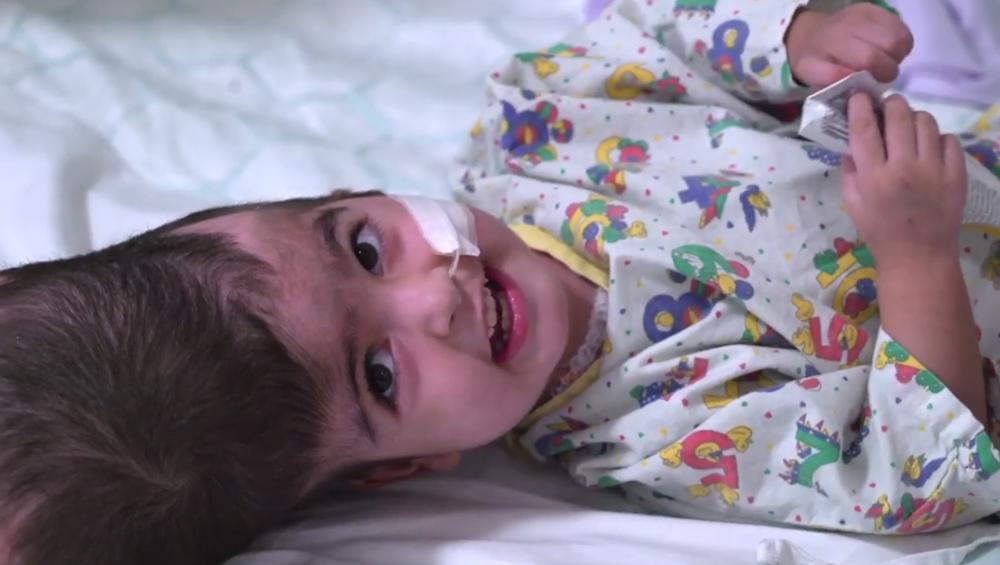 चमत्कार: सिर से जुड़ी दुर्लभ जुड़वां बच्चियों को 55 घंटों की सर्जरी के सफलता पूर्वक किया गया अलग, देखें वीडियो