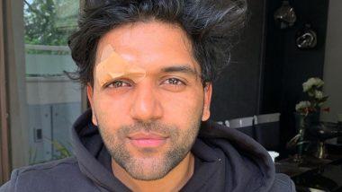 कनाडा में हुए हमले के बाद भारत लौटे पंजाबी पॉप गायक गुरु रंधावा, चेहरे पर साफ दिख रहे हैं घाव के निशान