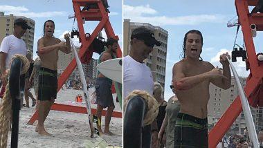 फ्लोरिडा: सर्फर को शार्क ने काटा, हॉस्पिटल जाने के बजाय पहुंचा बार, देखें वीडियो