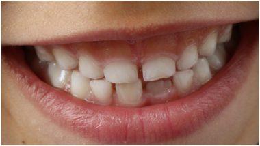 चेन्नई: जबड़े में थी सूजन, सर्जरी हुई तो 7 साल के बच्चे के मुंह से डॉक्टरों ने निकाले 526 दांत, देखें तस्वीरें