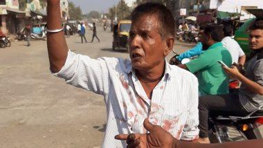 देवेंद्र फडणवीस के सीएम बनने से खफा शिवसेना कार्यकर्ता ने काटी हाथ की नस, हॉस्पिटल में भर्ती