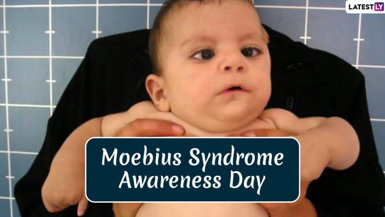 Moebius Syndrome Awareness Day 2020: क्या है मोबियस सिंड्रोम, जानें दुर्लभ न्यूरोलॉकिल स्थिति के प्रति जागरूकता के इस दिवस का महत्व और इतिहास