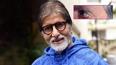 अमिताभ बच्चन को आंख में हुई ये दिक्कत, महानायक ने फोटो शेयर करके लिखा ये इमोशनल मैसेज