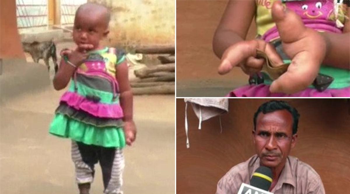 ओडिशा: ये बच्ची अजीब जन्मजात विसंगति से है पीड़ित, हाथ की उंगली पर बढ़ रही हैं 3 और उंगलियां