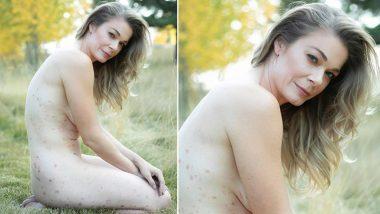 अमेरिकी एक्ट्रेस LeAnn Rimes ने शेयर की अपनी Nude Photo,सोरायसिस की बीमारी का किया खुलासा! देखें Photo