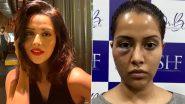 तमिल एक्ट्रेस Razia Wilson को फेस सर्जरी करवाना पड़ा भारी, खूबसूरत चेहरे का हुआ ऐसा हाल