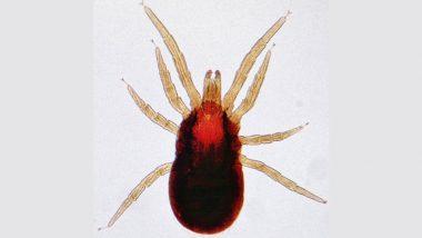 Scrub Typhus: क्या है सदियों पुरानी जानलेवा बीमारी स्क्रब टाइफस? शिमला में मिले इसके 4 मरीज, चिकनगुनिया जैसे होते हैं लक्षण
