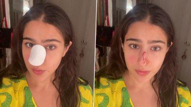 Sara Ali Khan की नाक से बह रहा था खून, वीडियो शेयर करके अम्मा-अब्बा से मांगी माफी