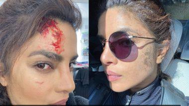 शूटिंग के दौरान Priyanka Chopra को लगी चोट, फोटो आई सामने