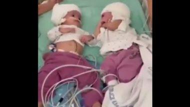 Israel: 12 घंटों की सर्जरी के बाद अलग हुए सिर से जुड़े दुर्लभ जुड़वा बच्चे, अब एक दूसरे को देखने में सक्षम